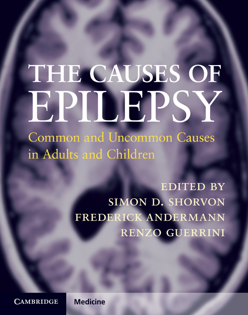 Onset of epilepsy in adults